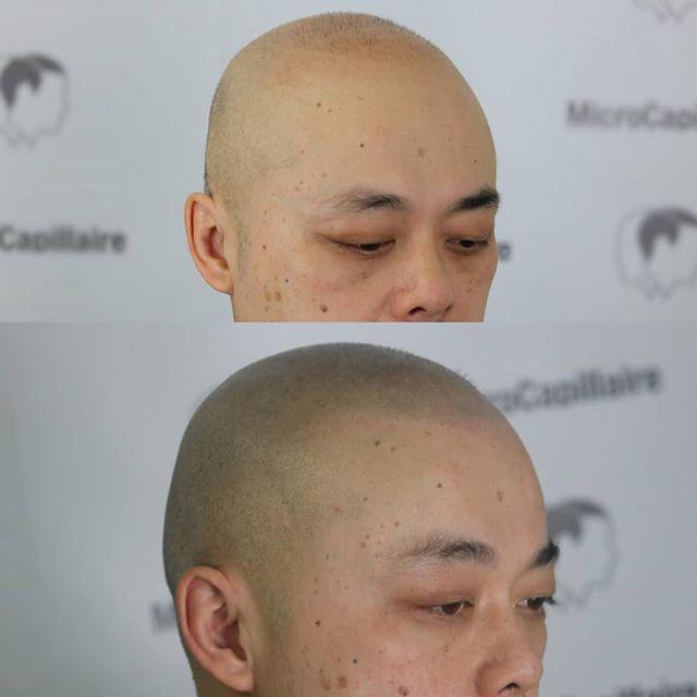 École de micropigmentation capillaire