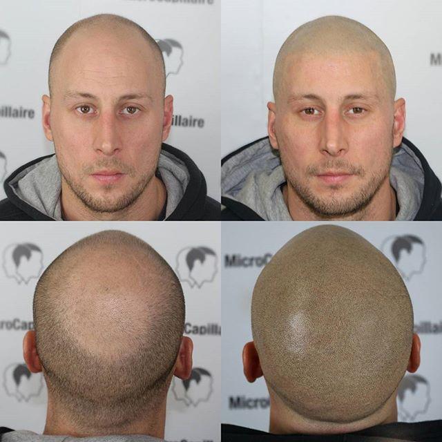 La solution à la perte de cheveux