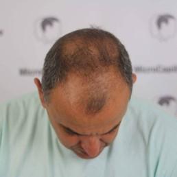 Problème; perte de cheveux