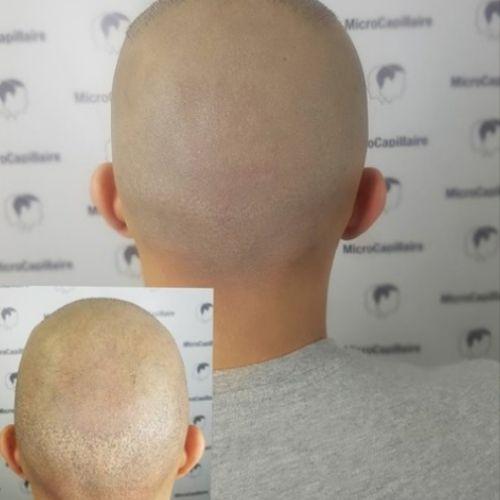 sclap micropigmentation