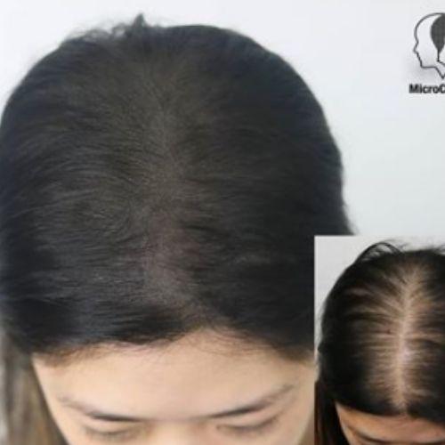 Causes aux pertes de cheveux